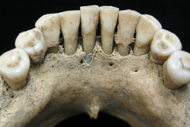 A fleck of lapis lazuli found in the lower jaw of a female skeleton from the 11th or 12th century, Photo: Christina Warinner